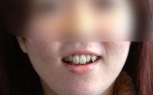 歯列矯正する前