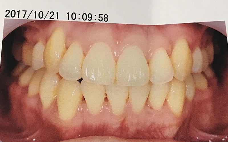 歯列矯正後